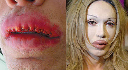 pete burns lips