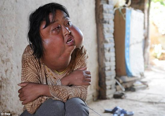 Li Hongfang facial tumors 1 Disfigured By Facial Tumors Pictures Seen on www.VyperLook.com