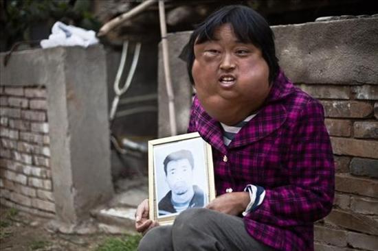 Li Hongfang facial tumors 2