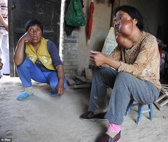 Li Hongfang facial tumors 3