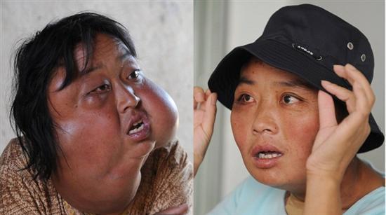 Li Hongfang facial tumors 5
