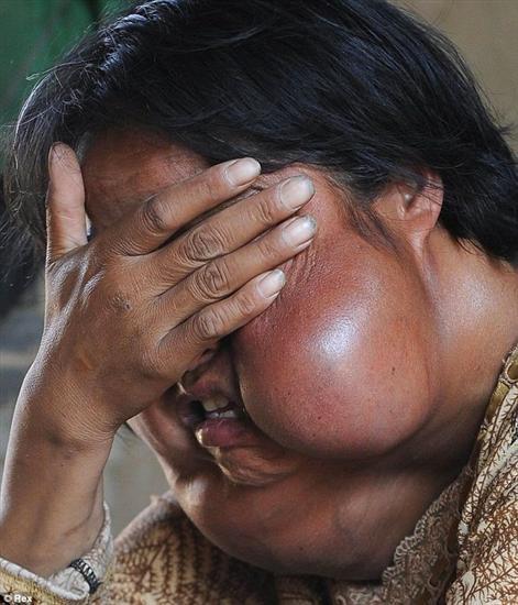 Li Hongfang facial tumors 6
