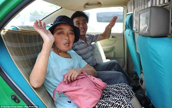 Li Hongfang facial tumors 8