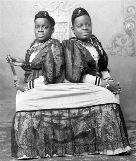 Conjoined twins Millie and Christine McCoy 1