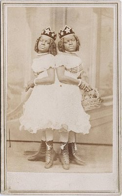 Conjoined twins Millie and Christine McCoy 2