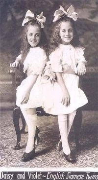 Daisy and Violet Hilton 2
