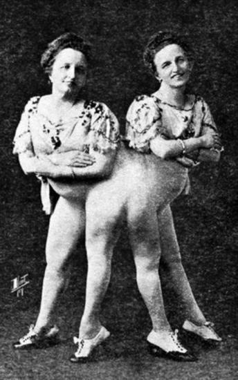 Rosa and Josefa Blazek 1