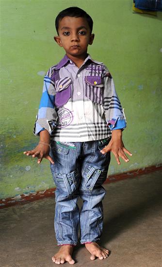 25 fingered boy 1