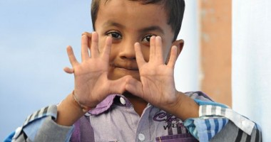 25 fingered boy 4 Indian Child with 25 fingers Pictures Seen on www.VyperLook.com