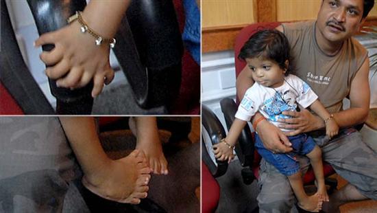 Akshat Saxena 34 fingers