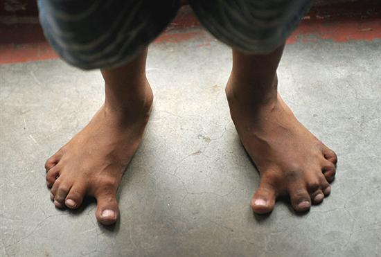 Arpan Saxena 25 fingers 2