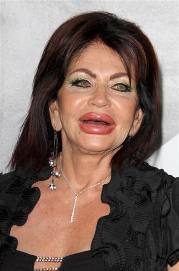 Worst Plastic Surgeries: Celebs & Regular People Pictures Seen on www.VyperLook.com