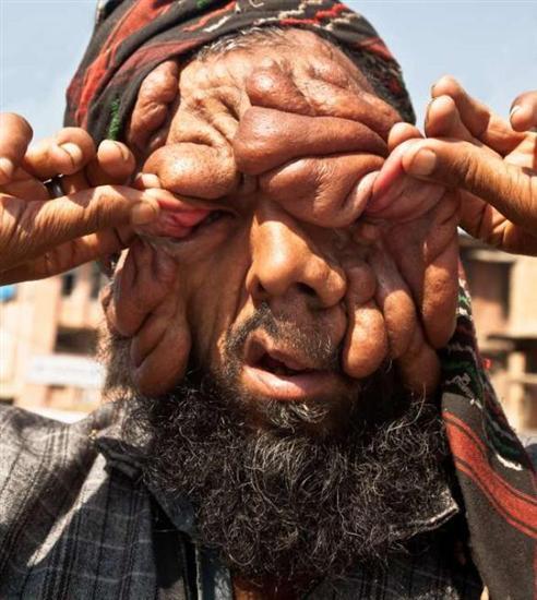 Mohammad Latif Khatana - man with no face1