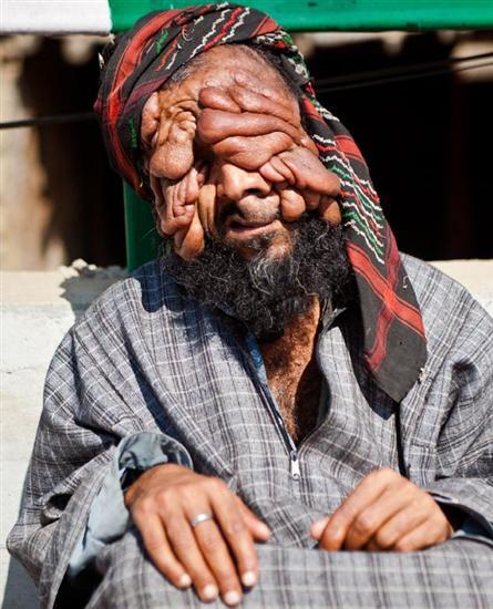 Mohammad Latif Khatana - man with no face2