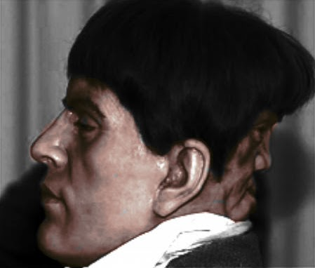 two faced man Edward Mordake 1 Man With 2 Faces   Edward Mordake as seen on CoolWeirdo.com
