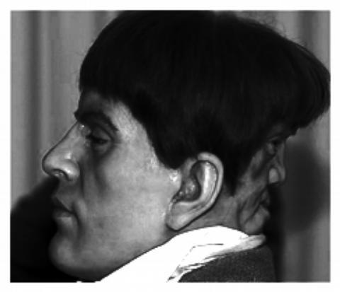 two faced man Edward Mordake 2