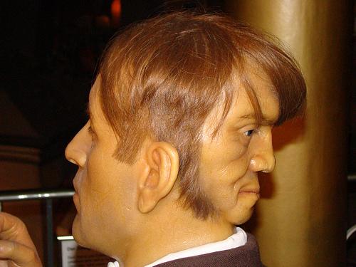 two faced man Edward Mordake 3