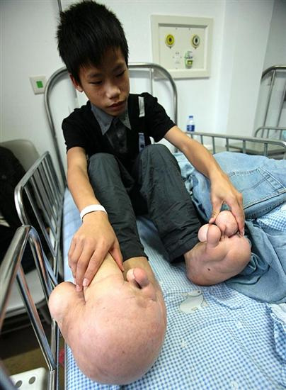 chinese boy with huge feet 2