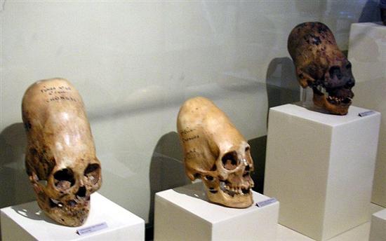 flattened skulls