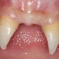 Boy with vampire teeth 2