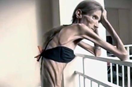 Valeria Levitina anorexia 2