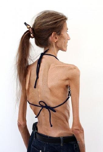 Valeria Levitina anorexia 7