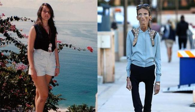 webe dyoung blog world�s skinniest woman