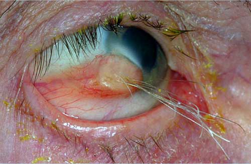 cystic-teratoma-on-an-eyeball