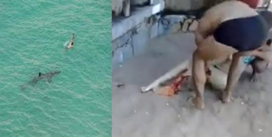 Bruna Gobbi attaked by shark 3