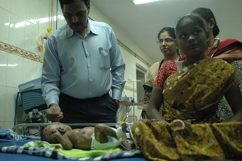 Indianbaby spontaneouscombustion 3