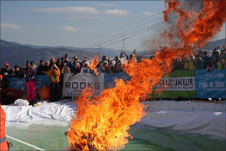 crazy skier got second degree burns