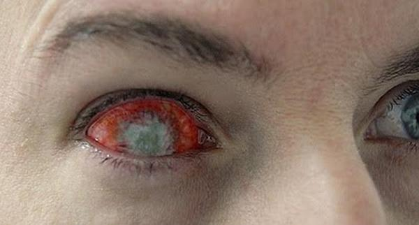 595484Most Weird Eyes Lenses Photos (19)